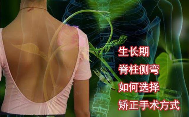 青少年生长期脊柱矫正.jpg
