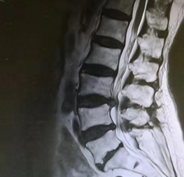 患者术前影像学资料,提示L3-4腰椎间盘突出、腰椎管狭窄.jpg