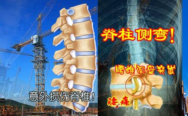脊椎损伤引发脊柱侧弯.jpg