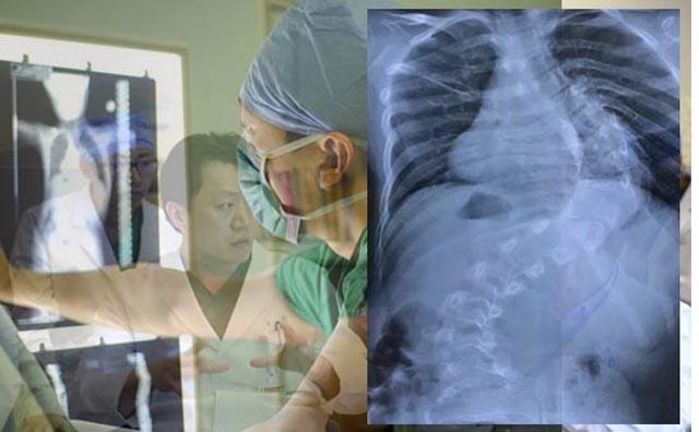 脊柱侧弯手术矫正.jpg