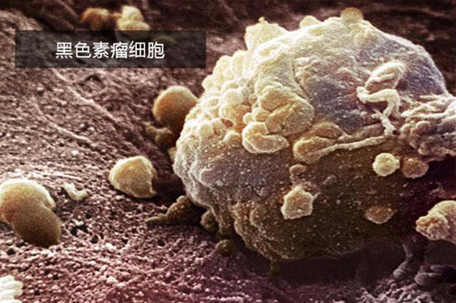 黑色素瘤治疗新方向.jpg