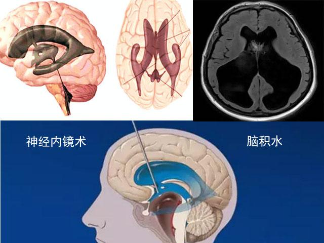 脑积水神经内镜技术1.jpg