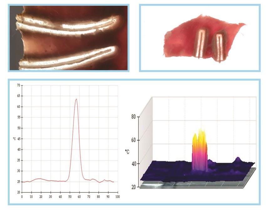 1.LS11射频能量平台热损伤研究.jpg