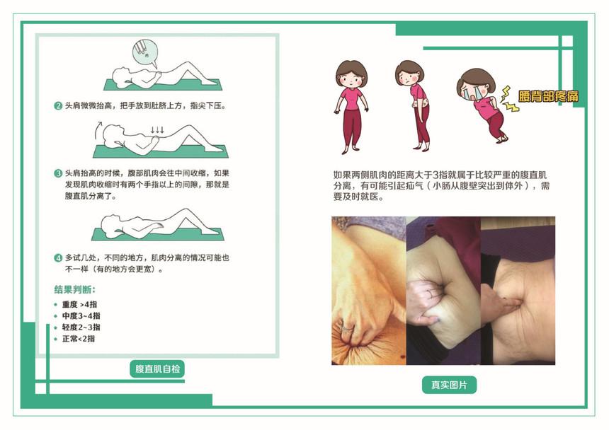 腹直肌小图 (2).jpg