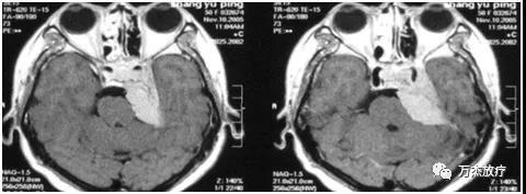 颅内脑膜瘤1.jpg