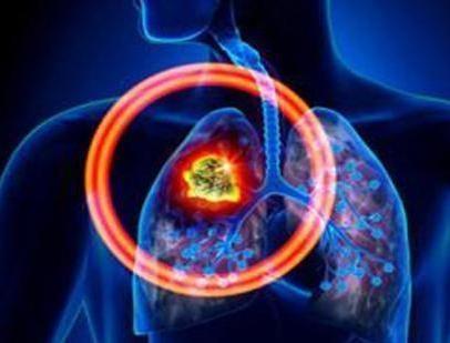肺结核.png