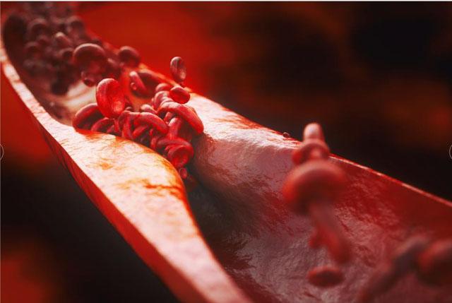 血栓抗凝1.jpg